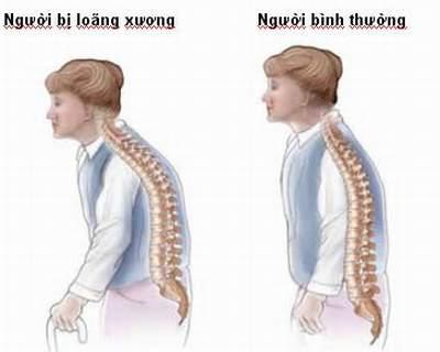 dấu hiệu tiền mãn kinh nguy cơ mất xương
